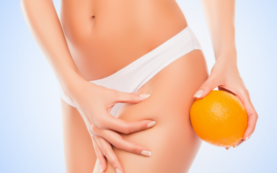 What is cellulite, and how can we help you lose it?